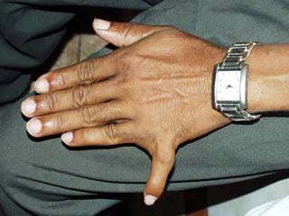fingers.jpg