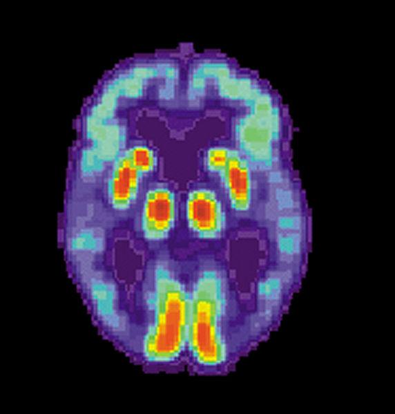 572px-PET_Alzheimer.jpg